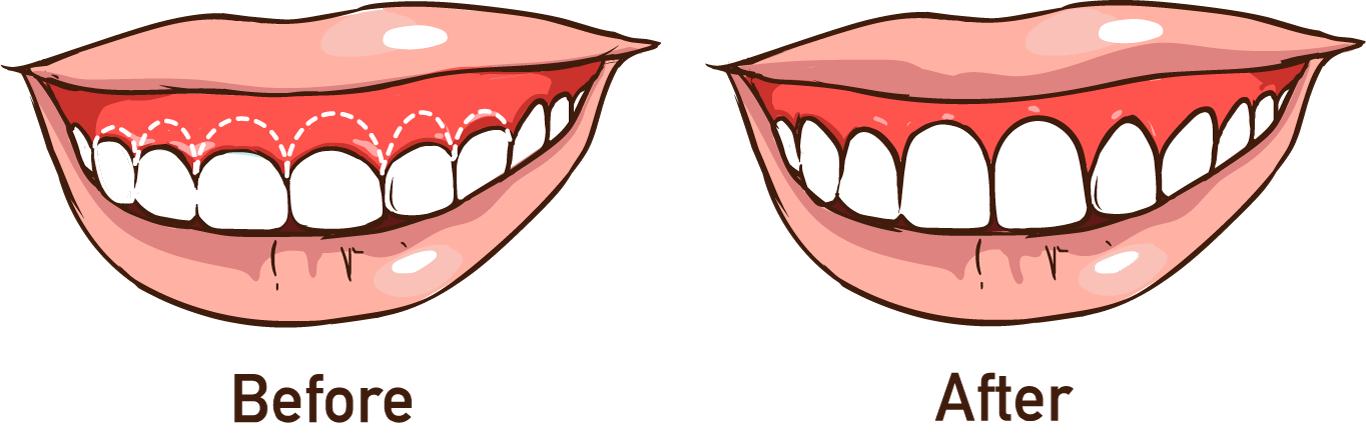 illustration of gum contouring results