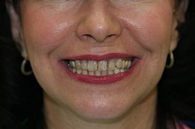 smile makeover before photo