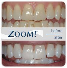 Before and after photo Zoom! Whitening