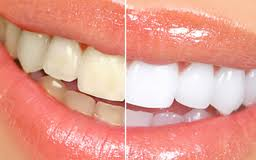 Teeth in need of whitening