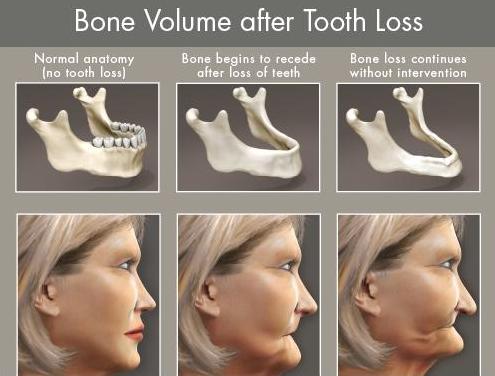 Illustration of jawbone loss