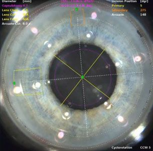 Close up of eye and imaging software overlay