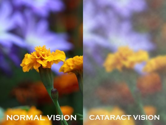 Normal vs. blurred vision due to cataracts