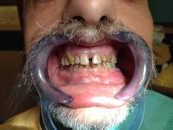 Close-up of a man's teeth prior to cosmetic treatment.