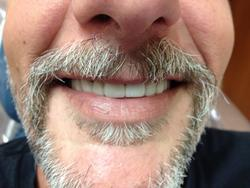 Close-up of a man's teeth after cosmetic treatment.