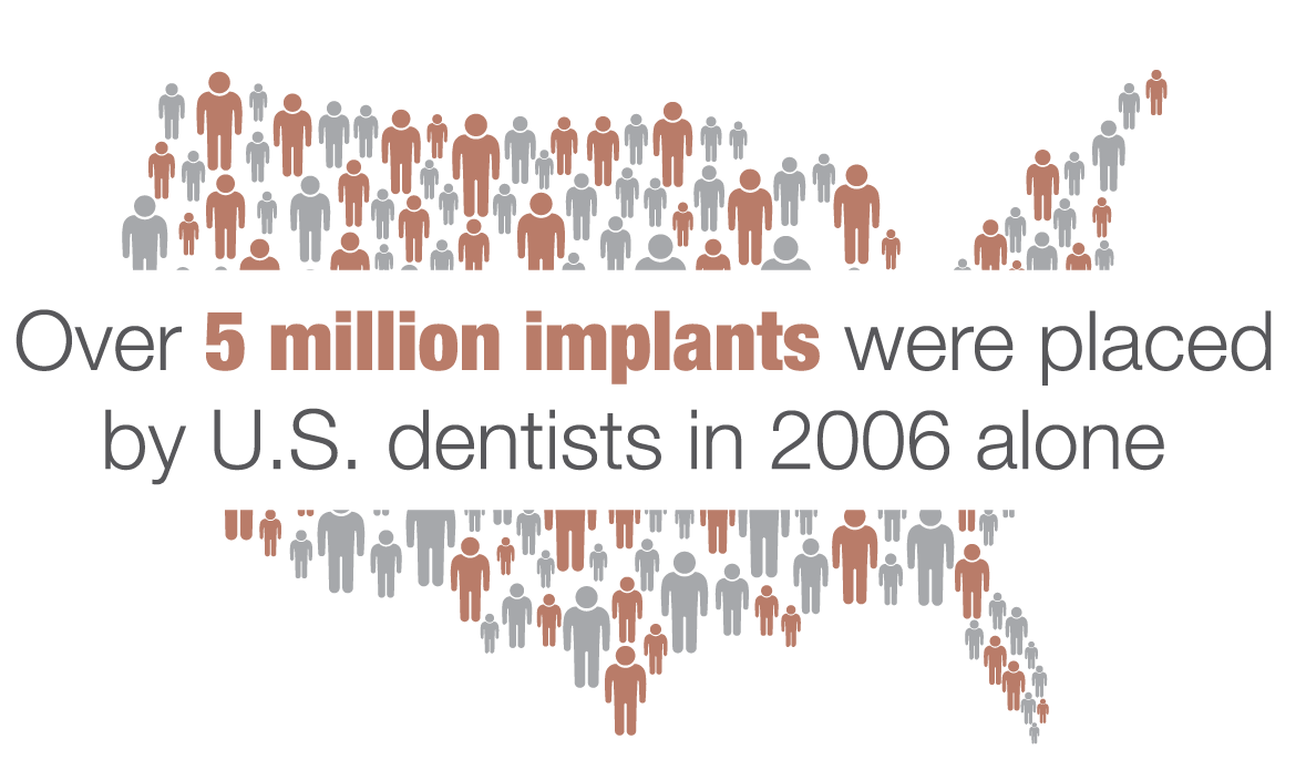 over 5 million implants were placed by U.S. dentist in 2006 alone