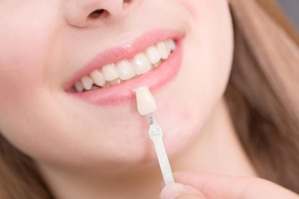 planning veneers treatment
