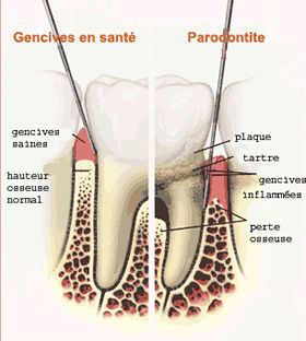 Illustration of tooth in the jaw
