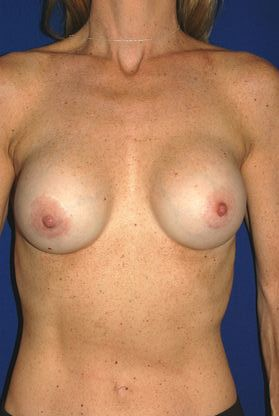 After breast surgery