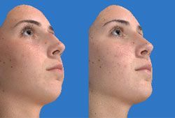 Close comparison of young girl's upturned face with and without chin implant