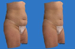 Side by side comparison of a woman's torso and thighs showing decreased fat in second shot