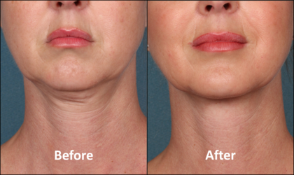 before/after kybella