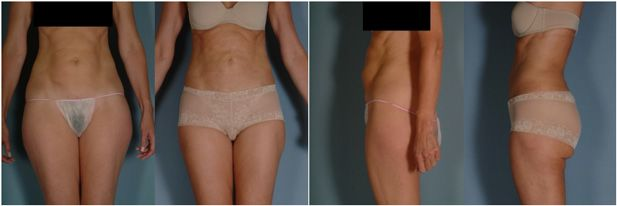 liposuction before and after results women abdomen underwear