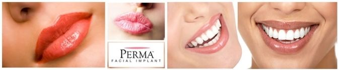 Perma facial implants advertisement
