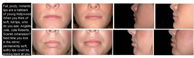 Perma facial implants advertisement