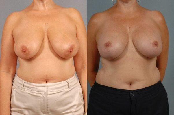 Before images of breast reduction patients.