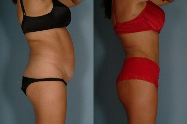 Before and after images of a tummy tuck patient.