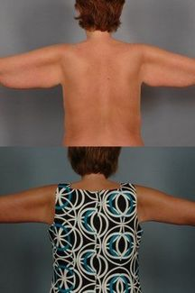 Before and after images of an arm lift patient.