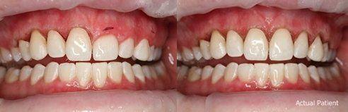 Gum Recontouring Bismarck Mandan Nd Heringer Dentistry Llc