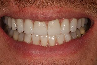 Bucks County Man's straight, white teeth from porcelain veneers