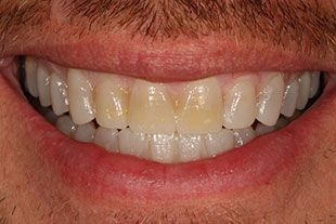 wax up of Bucks County man for Temporary veneers