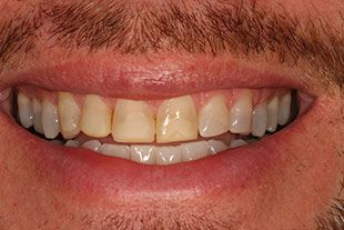 Bucks County Man's teeth before porcelain veneers