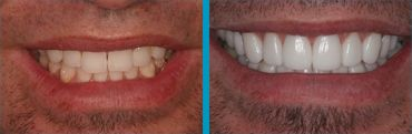 Doylestown man's new dental veneer smile before and after photo