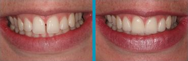 a beautiful smile before and after porcelain veneers