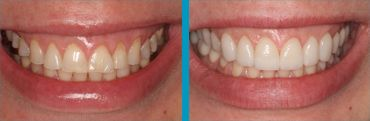 the effects of teeth whitening
