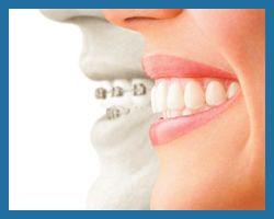 Invisalign compared to metal braces in Bucks County