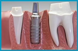 Dental Implant Benefits Philadelphia