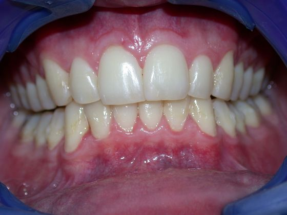After Invisalign Express treatment