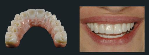 Photo of a zirconia restoration in place