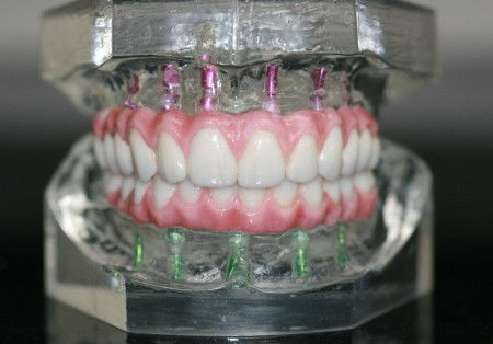 A close-up of the front portion of the highly durable Prettau® Zirconia replacement teeth