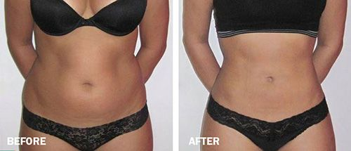 Tickle Lipo Before and After