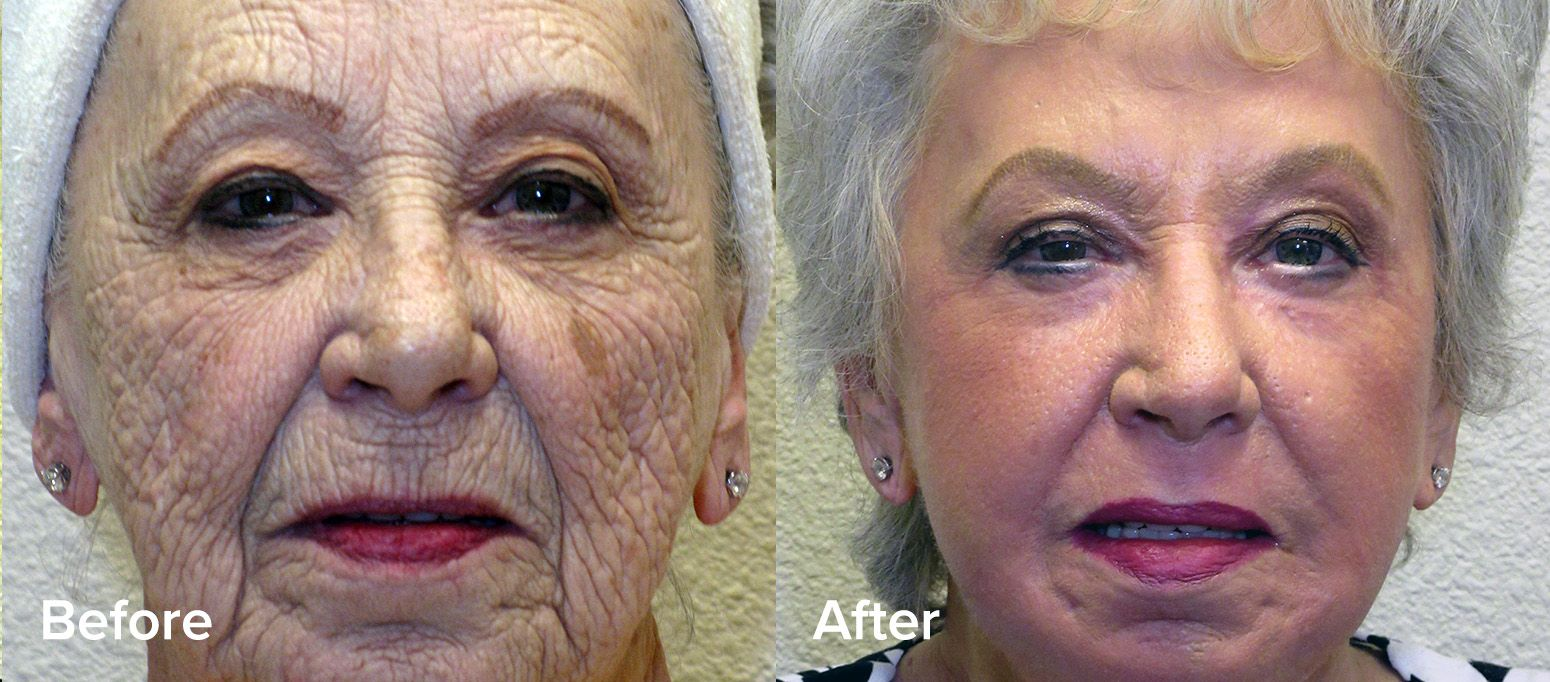 Renuvion Facelift Before and After
