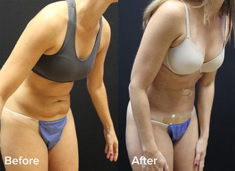 Before and after Renuvion Body Lift