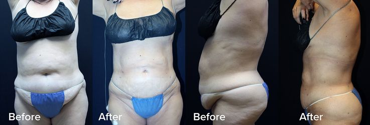 Before and After Renuvion Body Lift Powered by J-Plasma