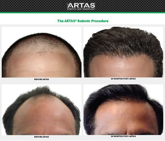 ARTAS iX Robotic Hair Restoration Before and After