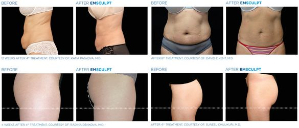 Emsculpt: Before and After