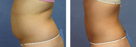 Tickle Lipo Before and After Photo for  Abdomen