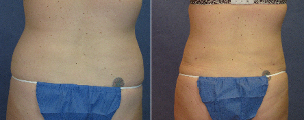 Tickle Lipo Before and After Photo for Flanks