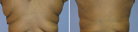 Tickle Lipo Before and After Photo for Bra Line