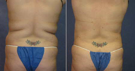 Tickle Lipo Before and After Photo for Muffin Top and Bra Line