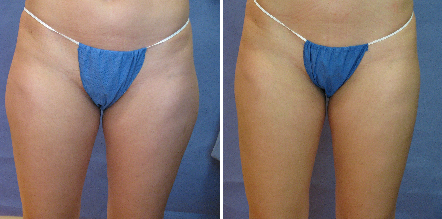 Tickle Lipo Before and After Photo for Thighs