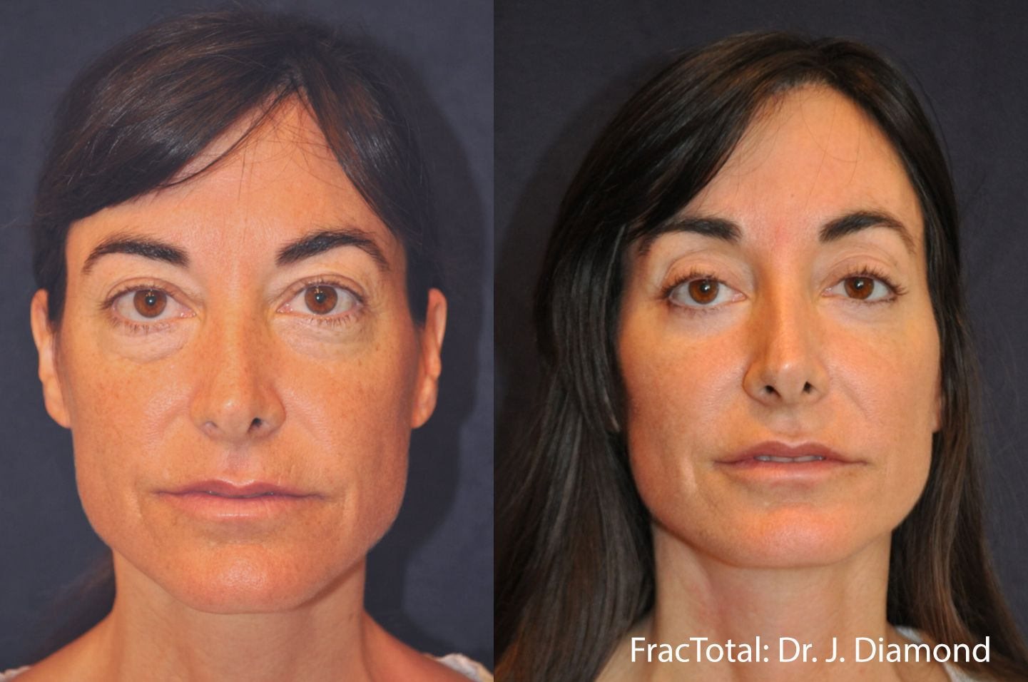 Fractional Resurfacing Before and After Photo