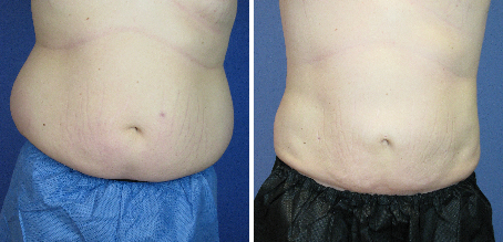 Tickle Lipo Before and After Photo for Abdomen and Flanks