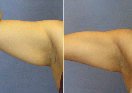 Tickle Lipo Before and After Photo for Arms
