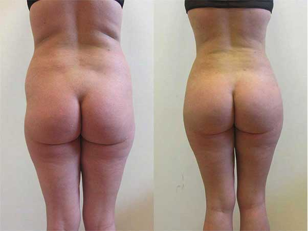 before after brazilian butt lift