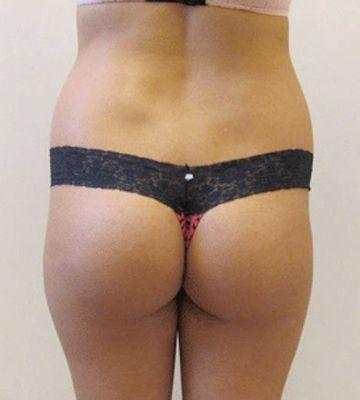 before butt lift